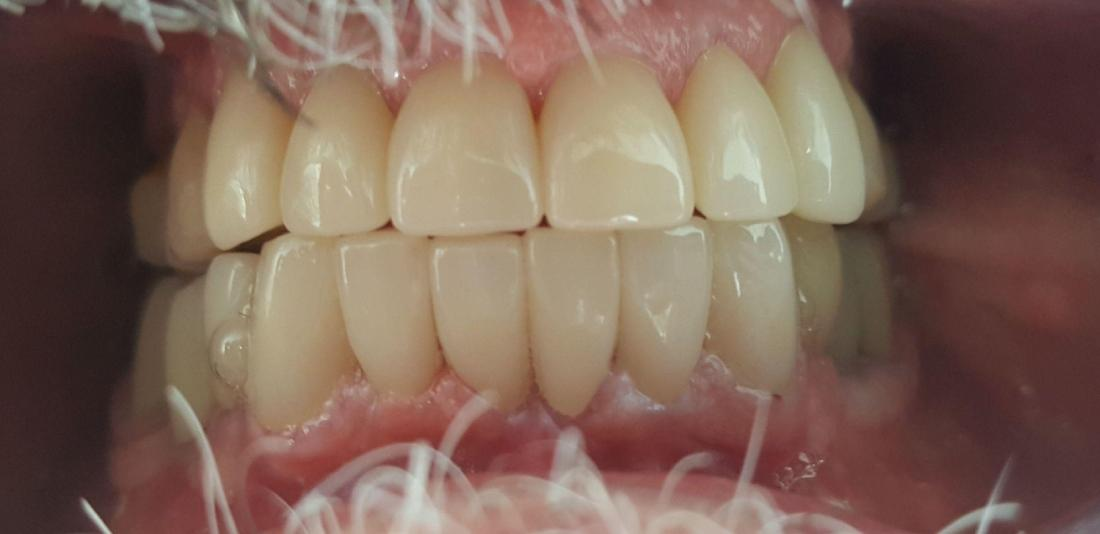 Upper and Lower Porcelain Crowns