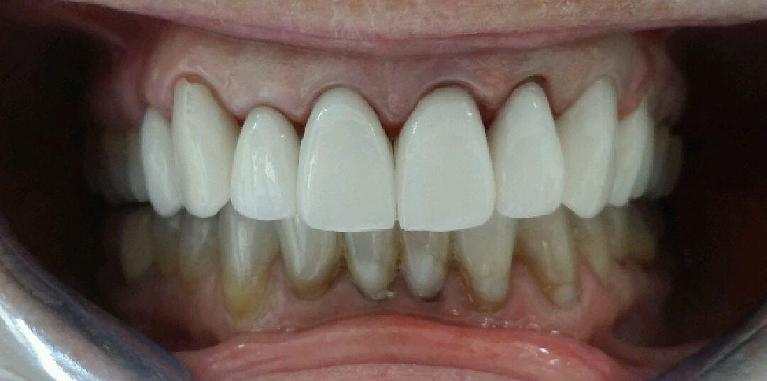 Upper-Porcelain-Crowns-and-Veneers-After-Image