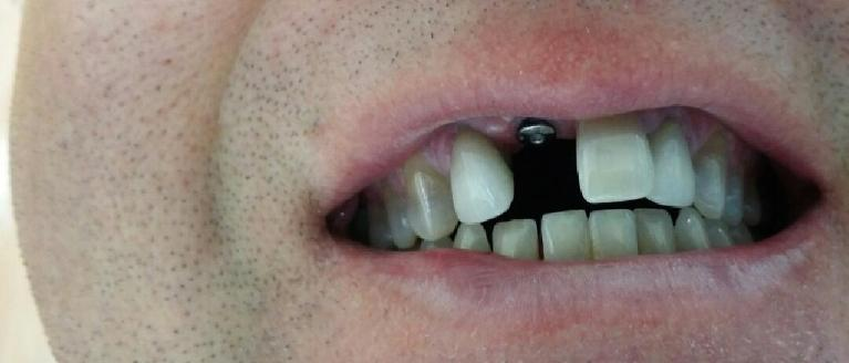 Single-Implant-Crown-Before-Image