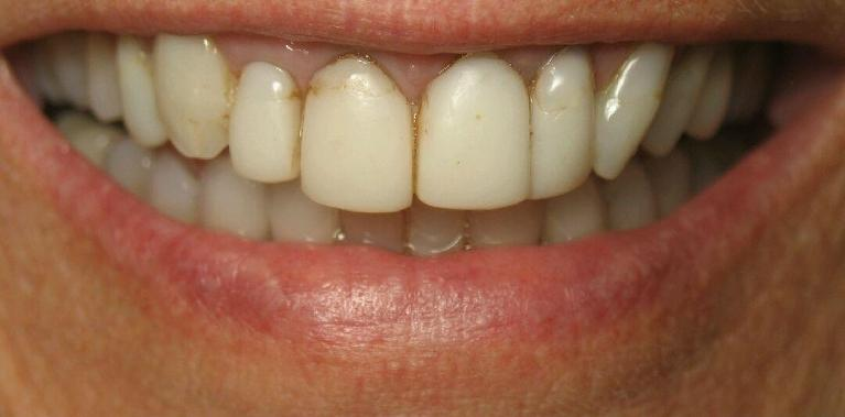 Upper-Porcelain-Crowns-and-Veneers-Before-Image