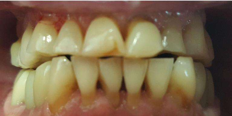 Upper-and-Lower-Porcelain-Crowns-Before-Image